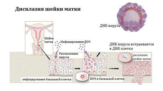 Влияние папилломавируса на развитие дисплазии
