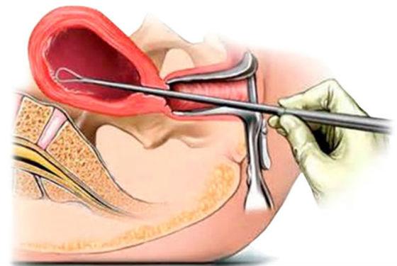 Как проводится чистка маточного эндометрия