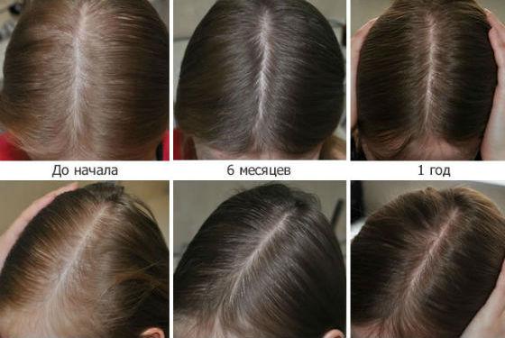 Применение препарата вызывает активацию волосяных фолликулов