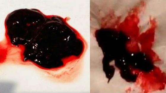 Кровяные комки в менструальных выделениях