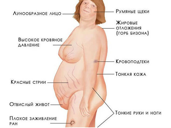 Признаки избытка кортизола в организме