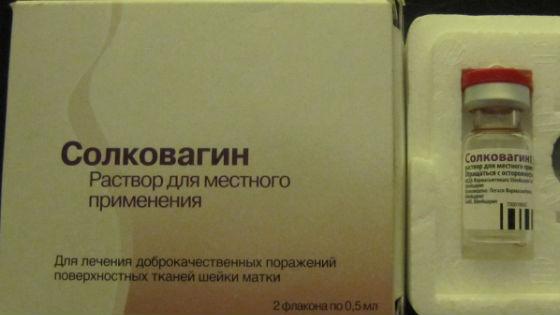 Химическое прижигание препаратом Солковагин
