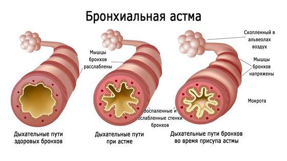 Уход за детьми :: Бронхиальная астма у детей: причины, симптомы и методы лечения