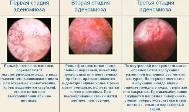 Аденомиоз матки симптомы лечение прогноз