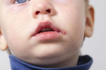 Стрептодермия у детей: лечение, основные признаки, виды, профилактика