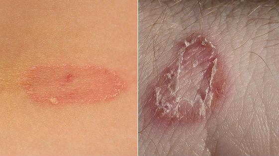 Грибковое поражение кожи