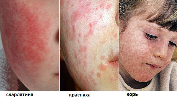 Симптомы вируса коксаки у ребенка фото