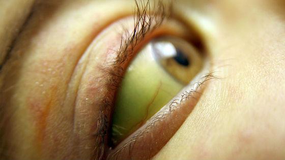 Пжелтение белков глаз при заражении токсоплазмой