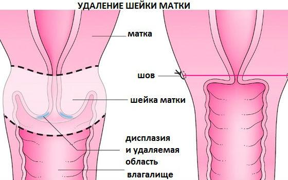 Лечение дисплазии путем полного или частичного удаления шейки