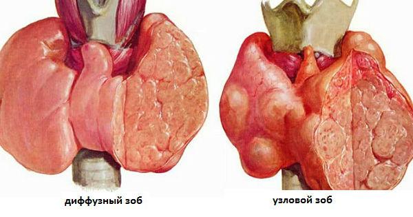 Разрастание щитовидки диффузное и узловое