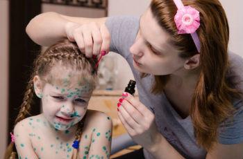 Симптомы ветряной оспы у детей