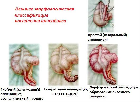 Виды воспаления аппендикса в зависимости от течения болезни