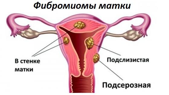 Основные виды фибромиоматозных узлов