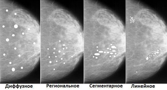 Виды мелких кальцинатов в женской груди