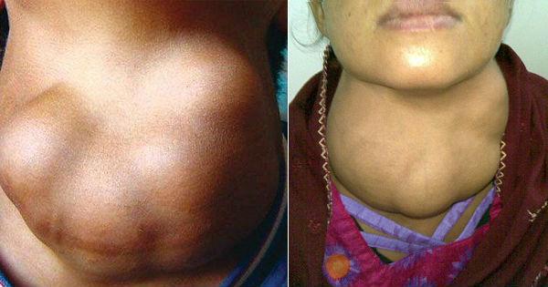 Сильное разрастание тканей щитовидки