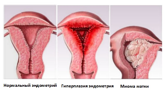 Сгустки крови при месячных: причины, норма и патология, симптом болезни, обследование