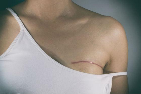 Послеоперационный шов на грудной железе