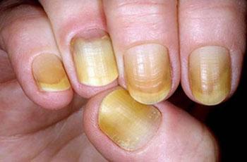 желтые ногти на руках от лака