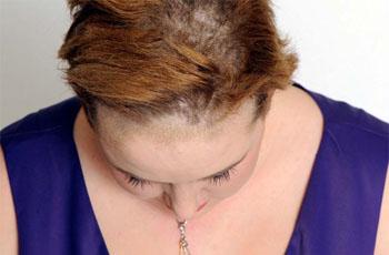 Грибковые заболевания кожи головы